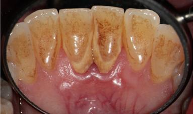 Pacientka s parodontitidou - stav před ošetřením