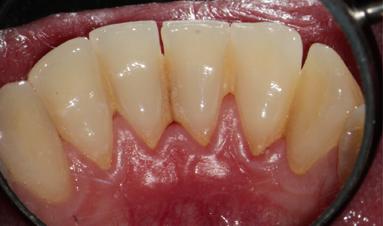 Pacient se zánětem dásní a zubním kamenem - stav před ošetřením